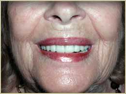After Dental Implants in Palm Harbor, FL