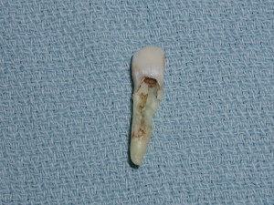Severe Tooth Resorption