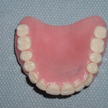 Outside Upper Denture