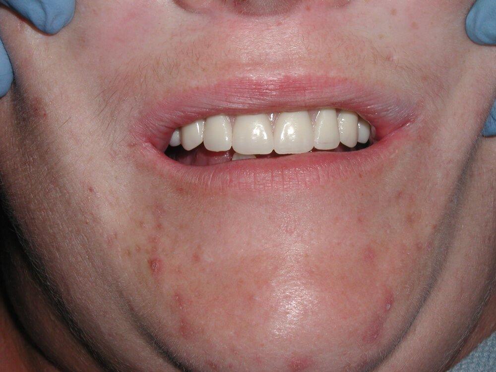 Smile Gallery Palm Harbor Fl Dentist Paul Caputo