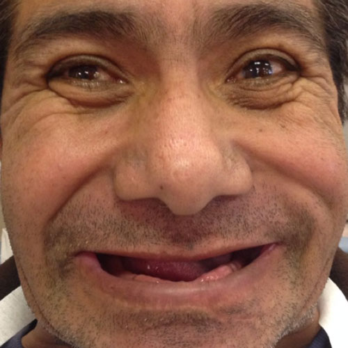 Before Dentures with Dr. Paul Caputo