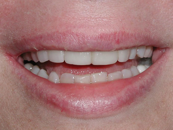 Porcelain Veneers After palm harbor, fl