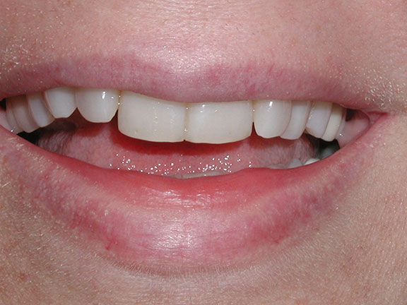 Porcelain Veneers Before palm harbor, fl